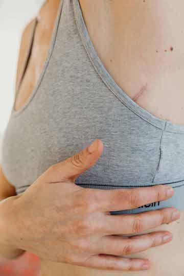Bye, bye Brüste: Wie ich letzten Sommer den Krebs besiegte 5
