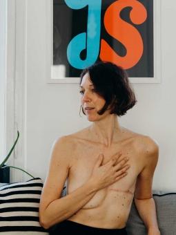 Mirian Brustkrebs 1